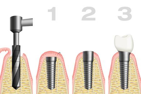 Wie läuft eine Implantatversorgung ab - bildliche Darstellung