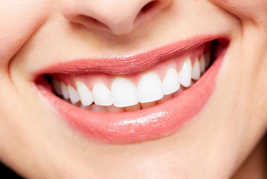 Mund mit strahlend weißen Zähnen