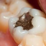 Welche Zahnfüllungen gibt es?